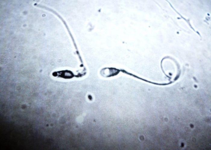donor-spermi-kemerovo